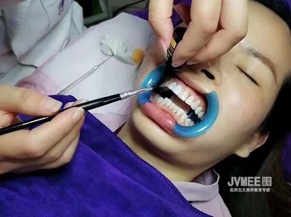 美牙技术去哪里学