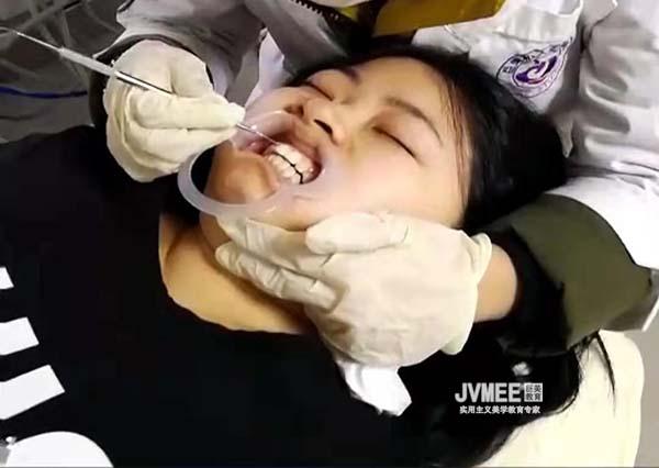 昭通市有学冰瓷美牙的吗