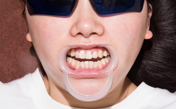女生学美牙好吗去哪里学