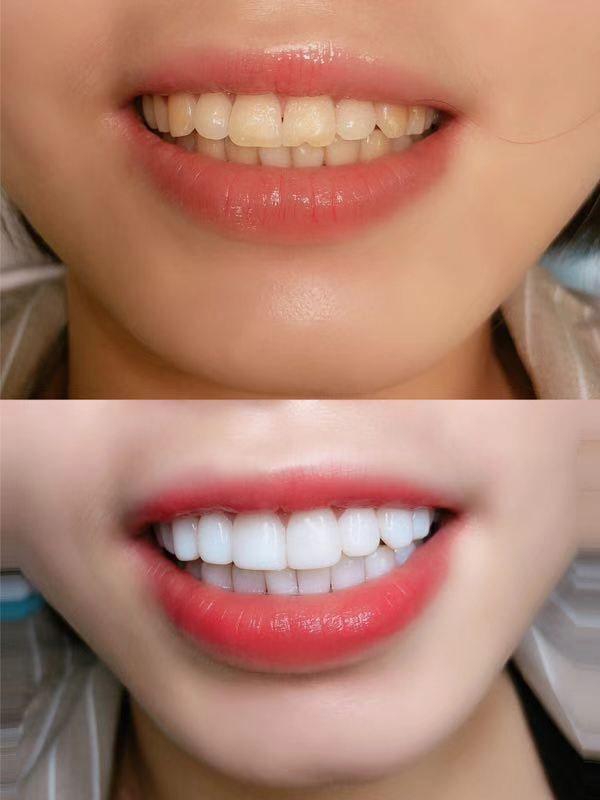 瓷贴面美白牙齿效果怎么样