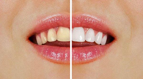 简单的生活牙齿美白方法