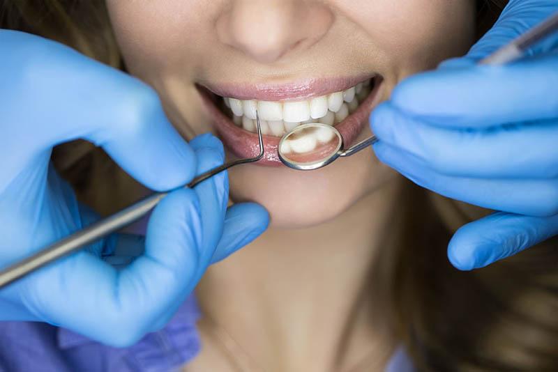 学全瓷牙齿贴面美白