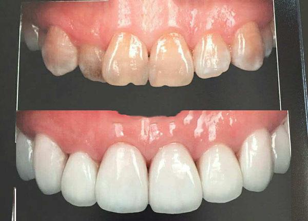 四环素牙齿的美白方法