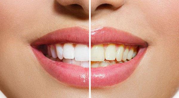 四环素牙可以冷光美白牙齿吗