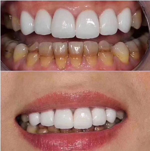 牙齿美白有哪些方法
