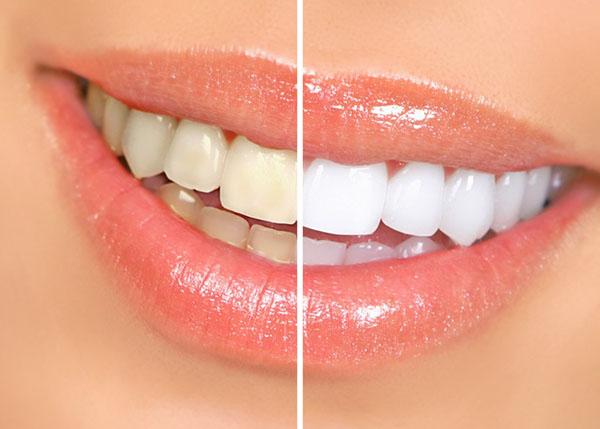 离子高光美白牙齿好不好