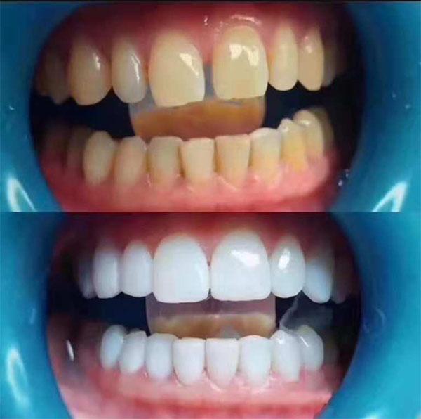 牙齿发黄是什么原因造成的