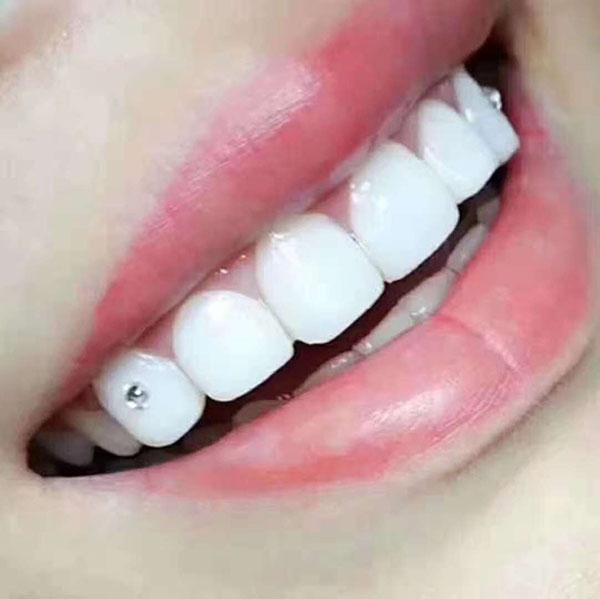 冰瓷牙齿贴面美牙常见问题