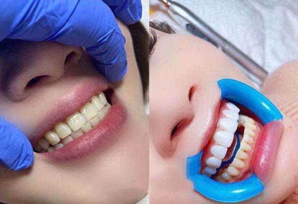 冷光牙齿美白原理是什么