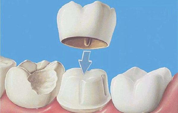 烤瓷牙硬质牙美白有什么特点