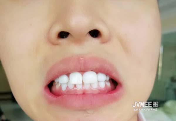 贵阳美牙培训在哪里